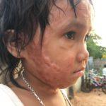 Thông tin mới nhất về bé bị bỏng Kpuih Hniêm